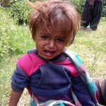 malnutrition-madana